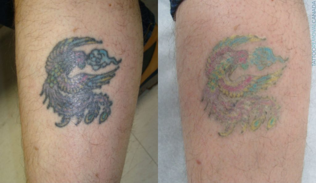 Rejuvi Tattoo Removal - Thairapy Exeter